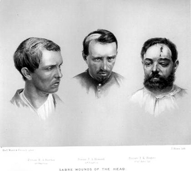 Saber wounds on the head Source: http://civilwartalk.com/attachments/saberwoundsa-jpg.7818/