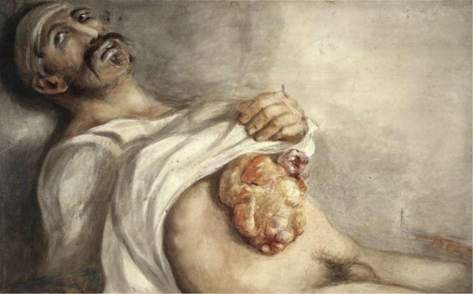 wounded in the abdomen by a saber, Peltier, Belgian hospital 2nd of July 1815; Sir Charles Bell's watercolours of wounds sustained by soldiers at the Battle of Waterloo, 1815 Source: http://wellcomelibrary.org