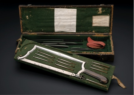 Amputation instrument set, Strasbourg, France, 1780-1820 Source: Science Museum London http://www.sciencemuseum.org.uk/broughttolife/objects/display.aspx?id=5476