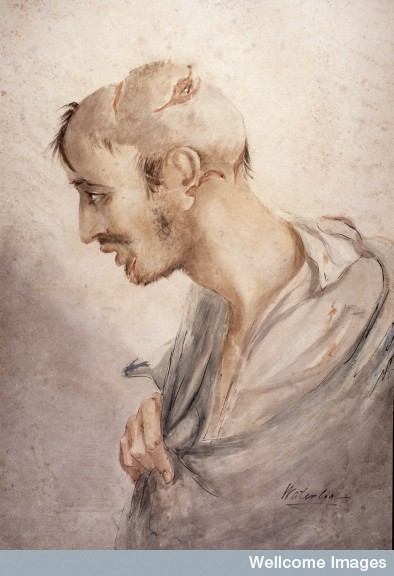 "Soldier suffering from head and facial injuries, profile inscribed ""Waterloo"". Sabre wound to head, Hospital de la Gendarmerie, 5 July 1815.  On the image can been seen that the head is shaven to make the treatment, usually suturing and bandaging, more easy. Watercolour 1836 by: Charles Bell  The RAMC Muniment Collection in the care of the Wellcome Library, Wellcome Images"